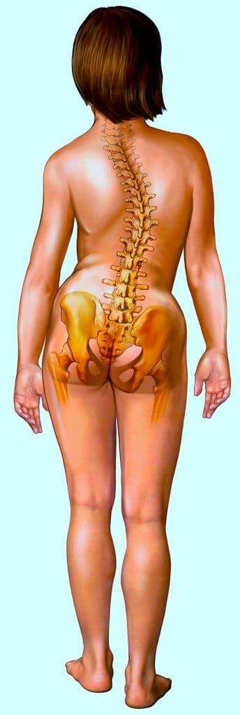 Scoliosi dorso lombare,destro convessa