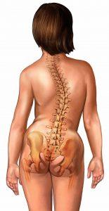 Scoliosi,destro convessa,colonna vertebrale