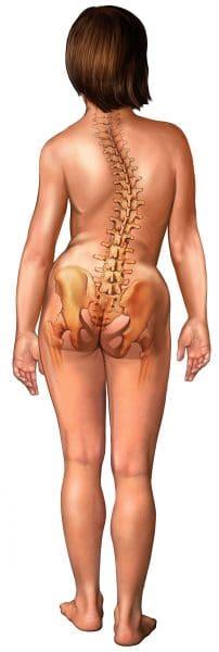 Scoliosi dorso lombare,colonna vertebrale