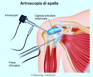 Massimo Defilippo intervento chirurgico f94c3c221f9c