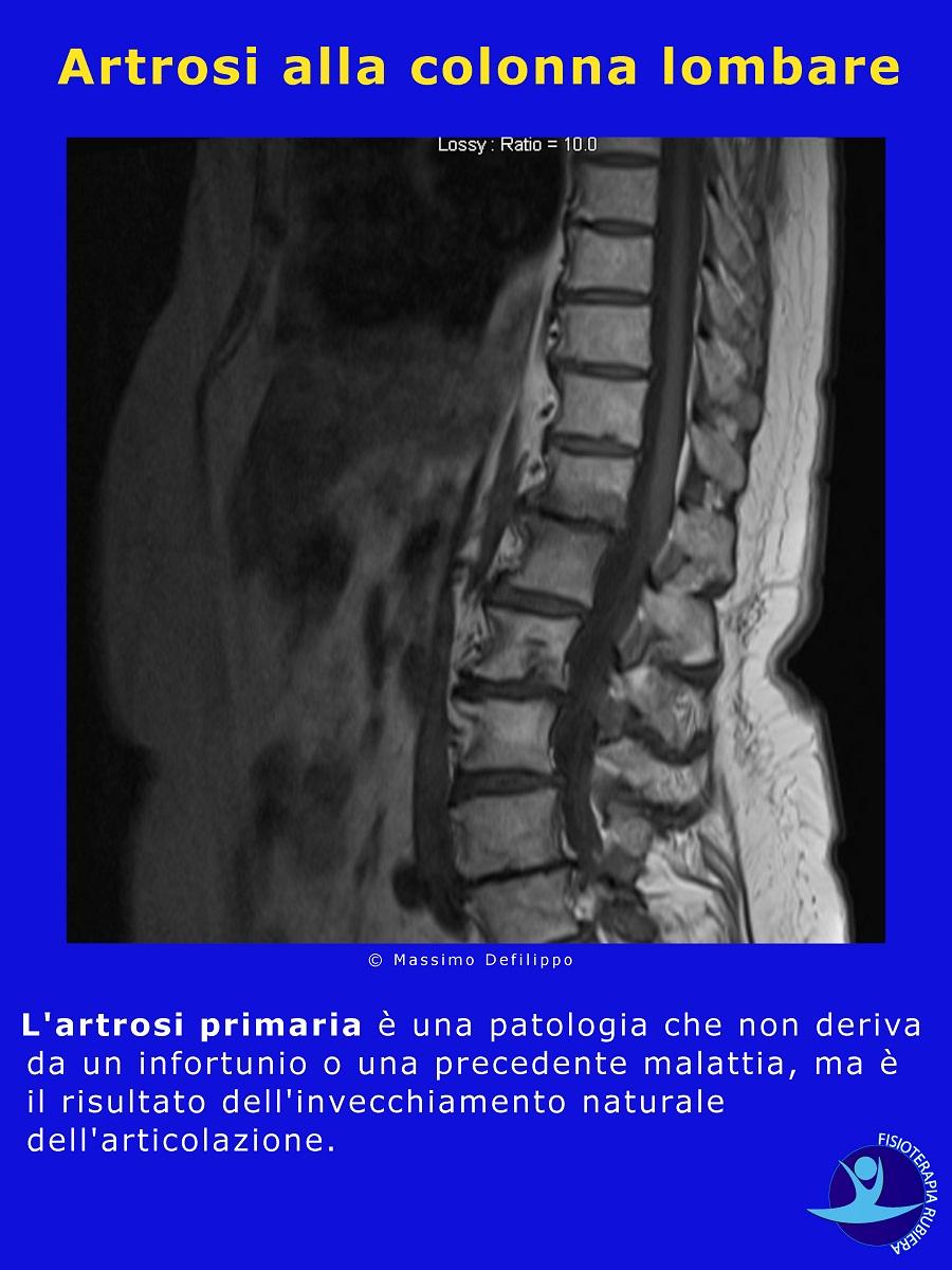 Artrosi alla colonna lombare