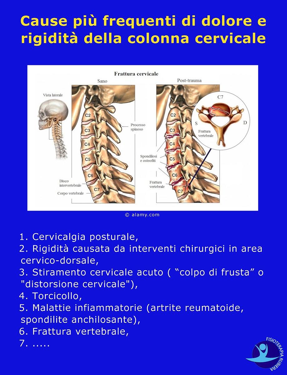 Cause più frequenti di dolore e rigidità della colonna cervicale