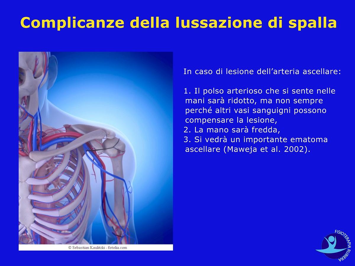 Complicanze della lussazione di spalla