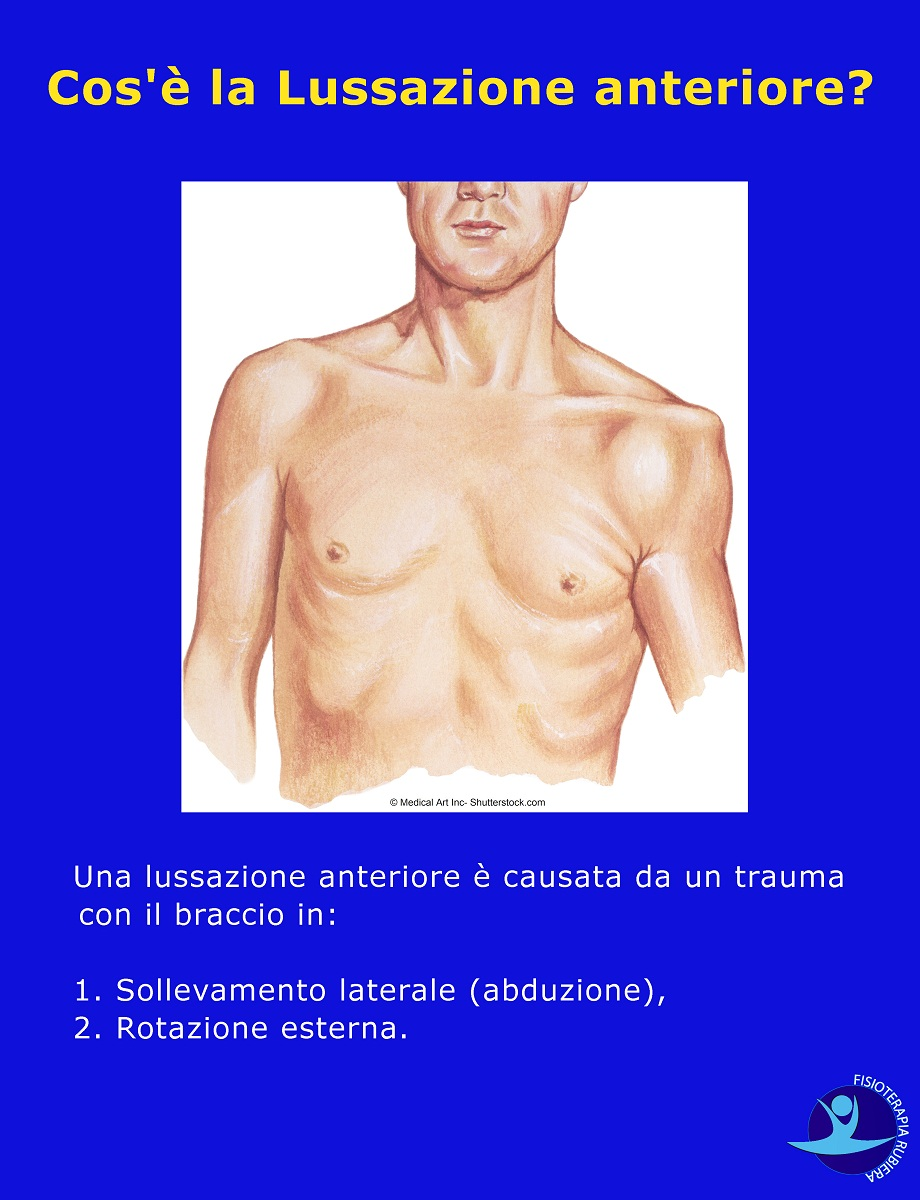 Lussazione anteriore