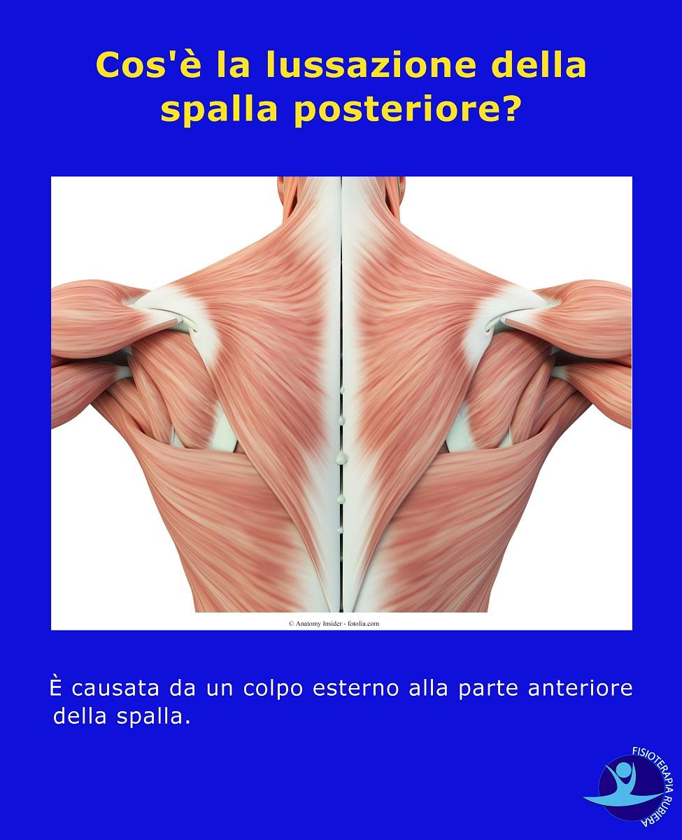 lussazione della spalla posteriore