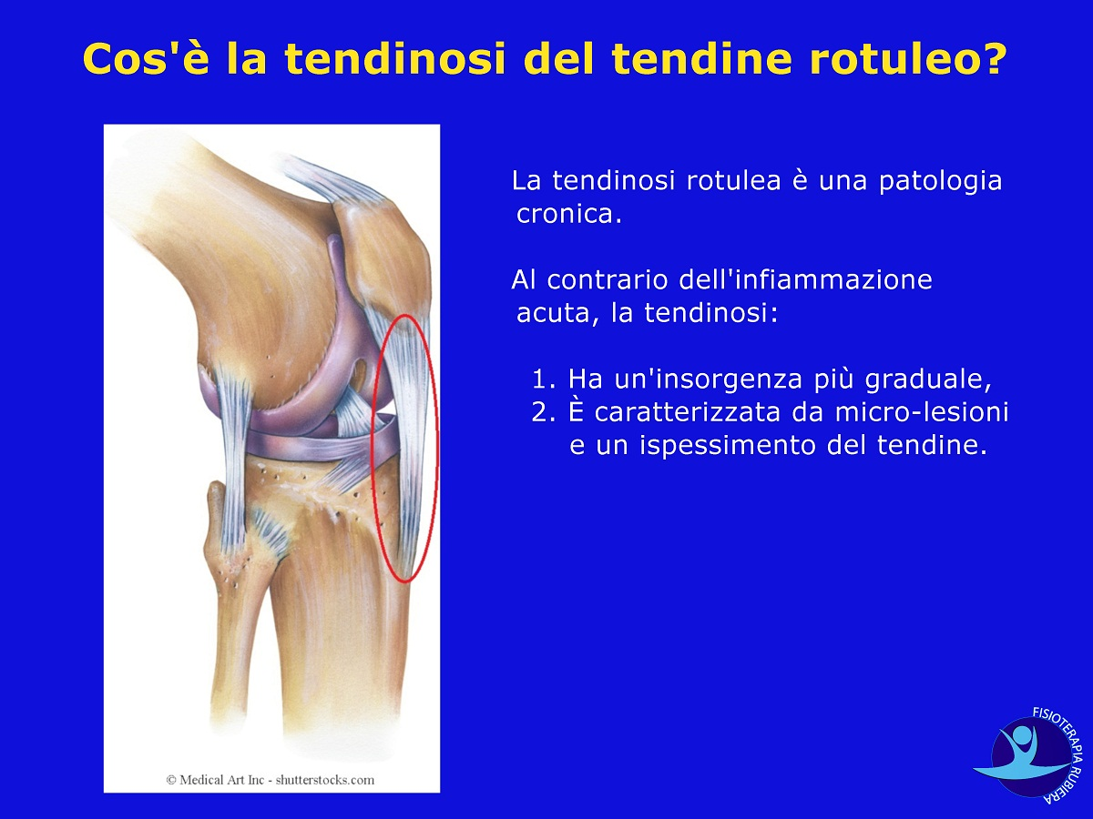 Cos'è la tendinosi del tendine rotuleo