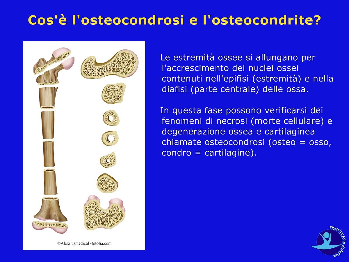 l'osteocondrosi e l'osteocondrite