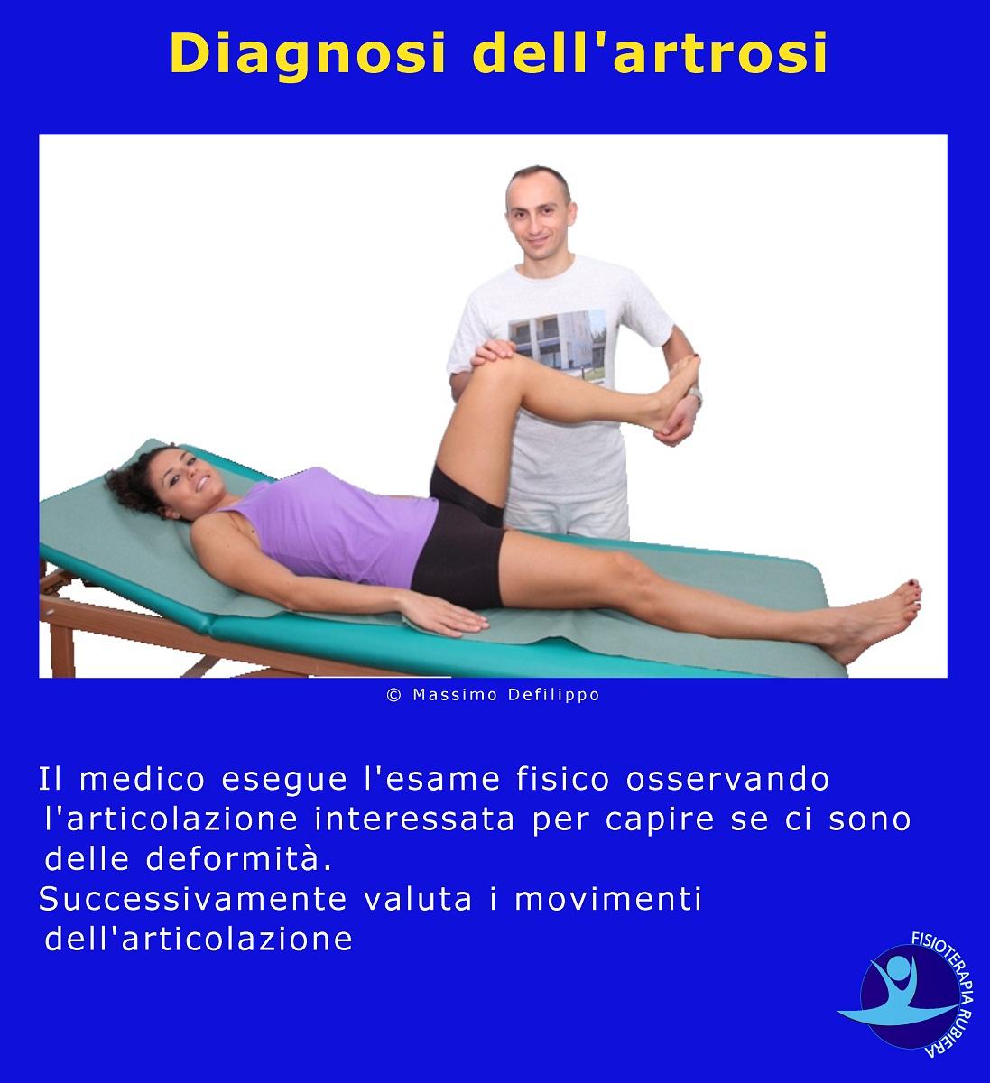 Diagnosi dell'artrosi