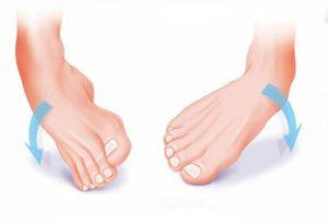 Distorsione di caviglia