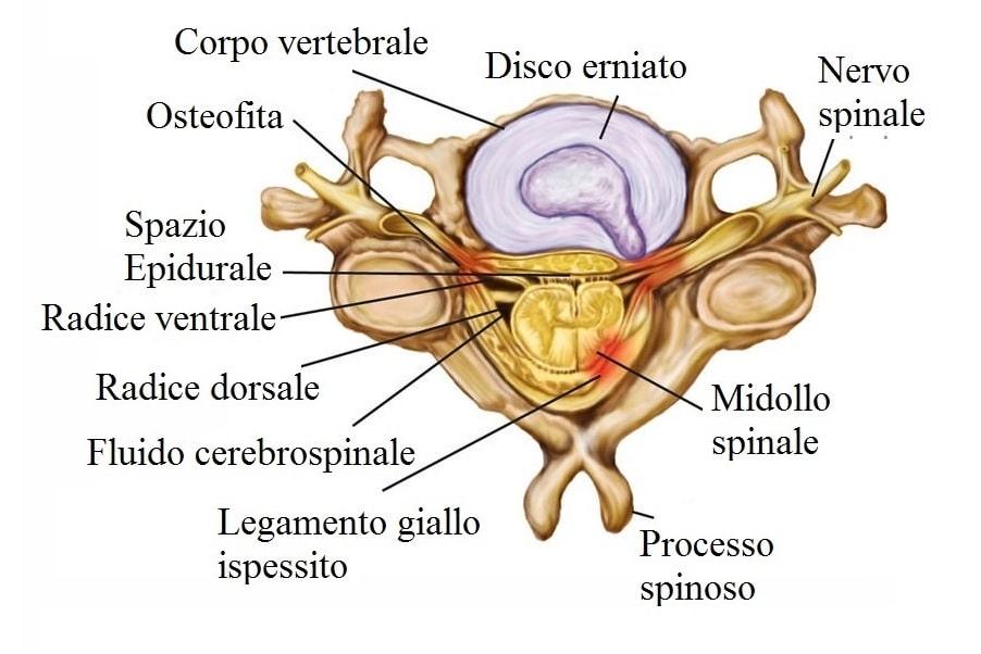 Ernia cervicale,discale,legamento ispessito,disco