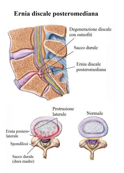 Ernia del disco,L5 S1