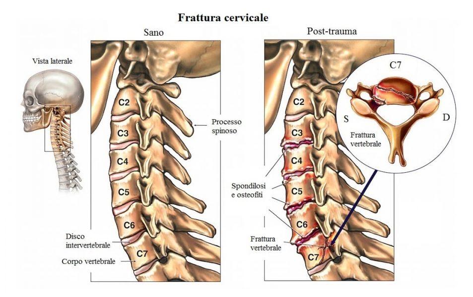 Frattura della vertebra c7,cervicale,male al collo