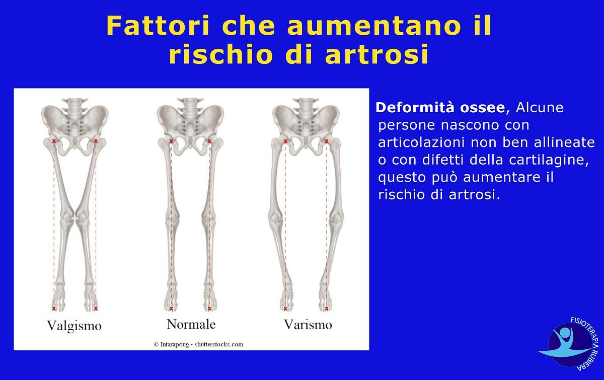 Fattori-che-aumentano-il-rischio-di-artrosi