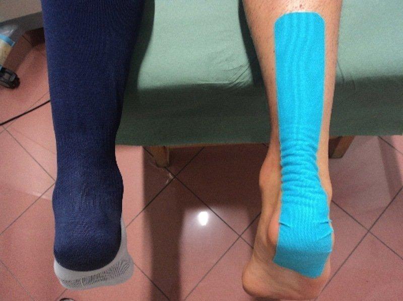 Kinesio-taping-neuromuscolare-drenaggio-detensione-tendine-tendinite-tendinosi-caviglia