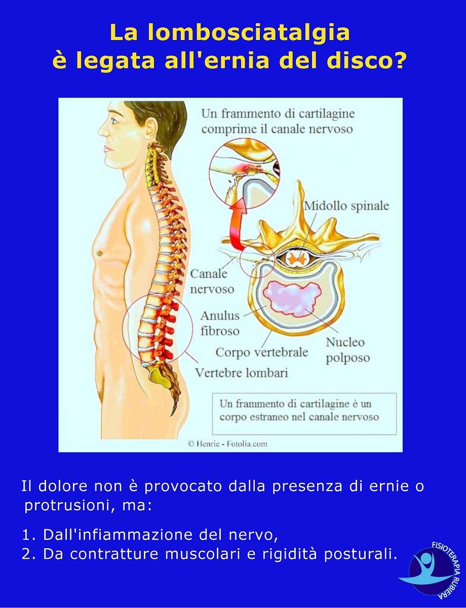 lombosciatalgia è legata all'ernia del disco