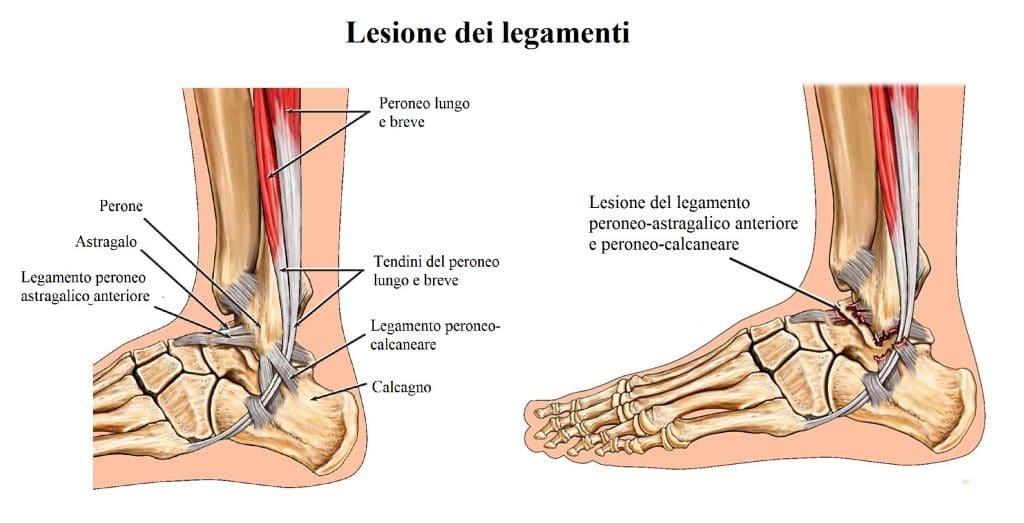 Legamenti della caviglia,lesione,rottura,distorsione,instabilità,peroneo astragalico anteriore,peroneo calcaneare