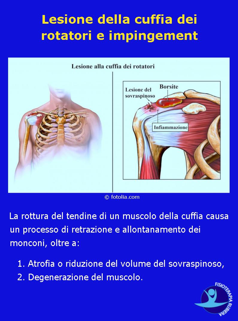 Lesione della cuffia dei rotatori e impingement