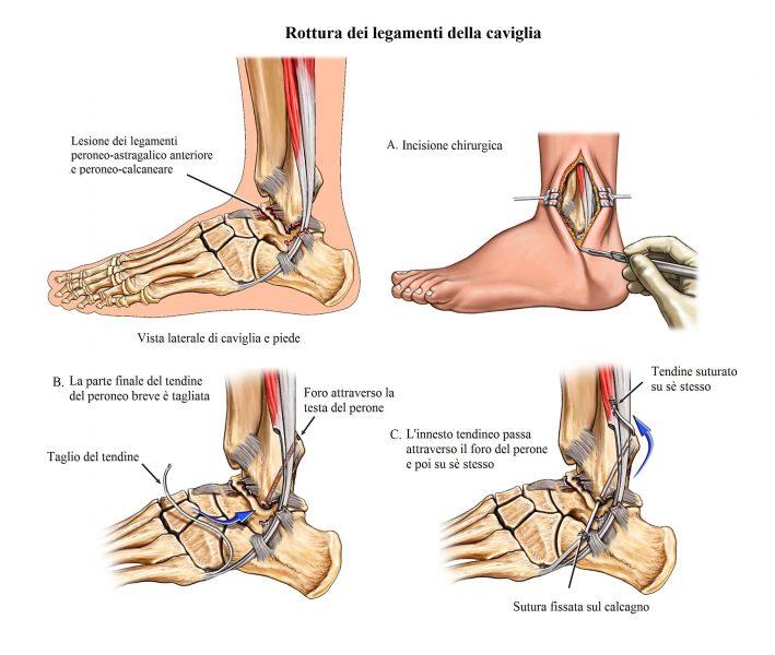distorsione alla caviglia,Intervento chirurgico