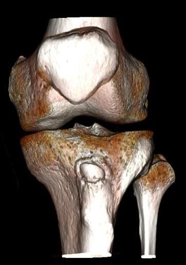 Osteocondrosi e osteocondrite