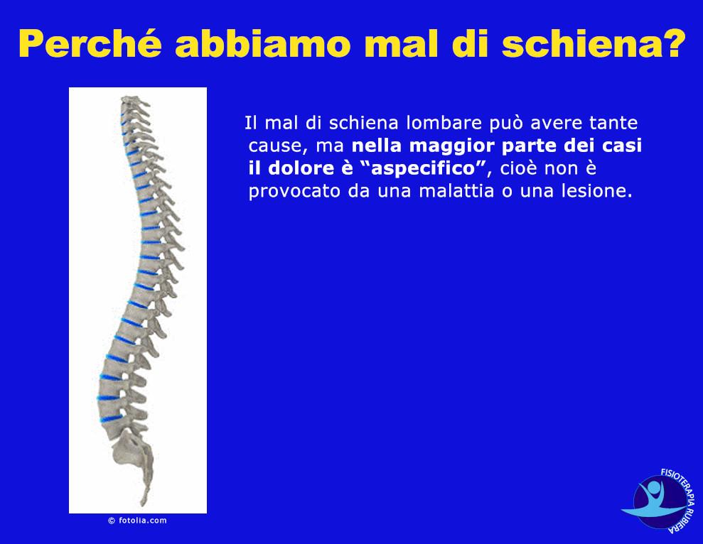 Perché abbiamo mal di schiena