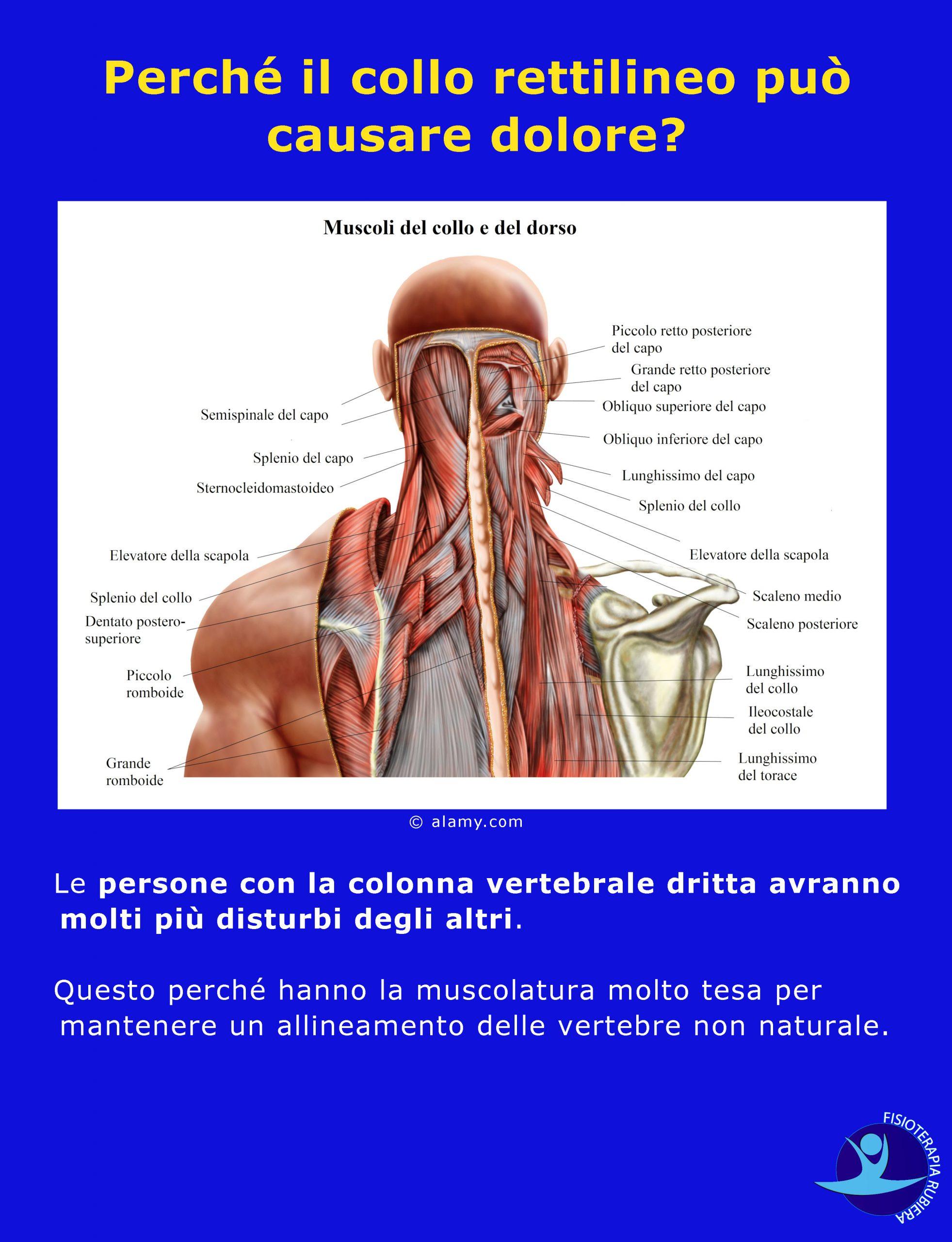 Perché il collo rettilineo può causare dolore