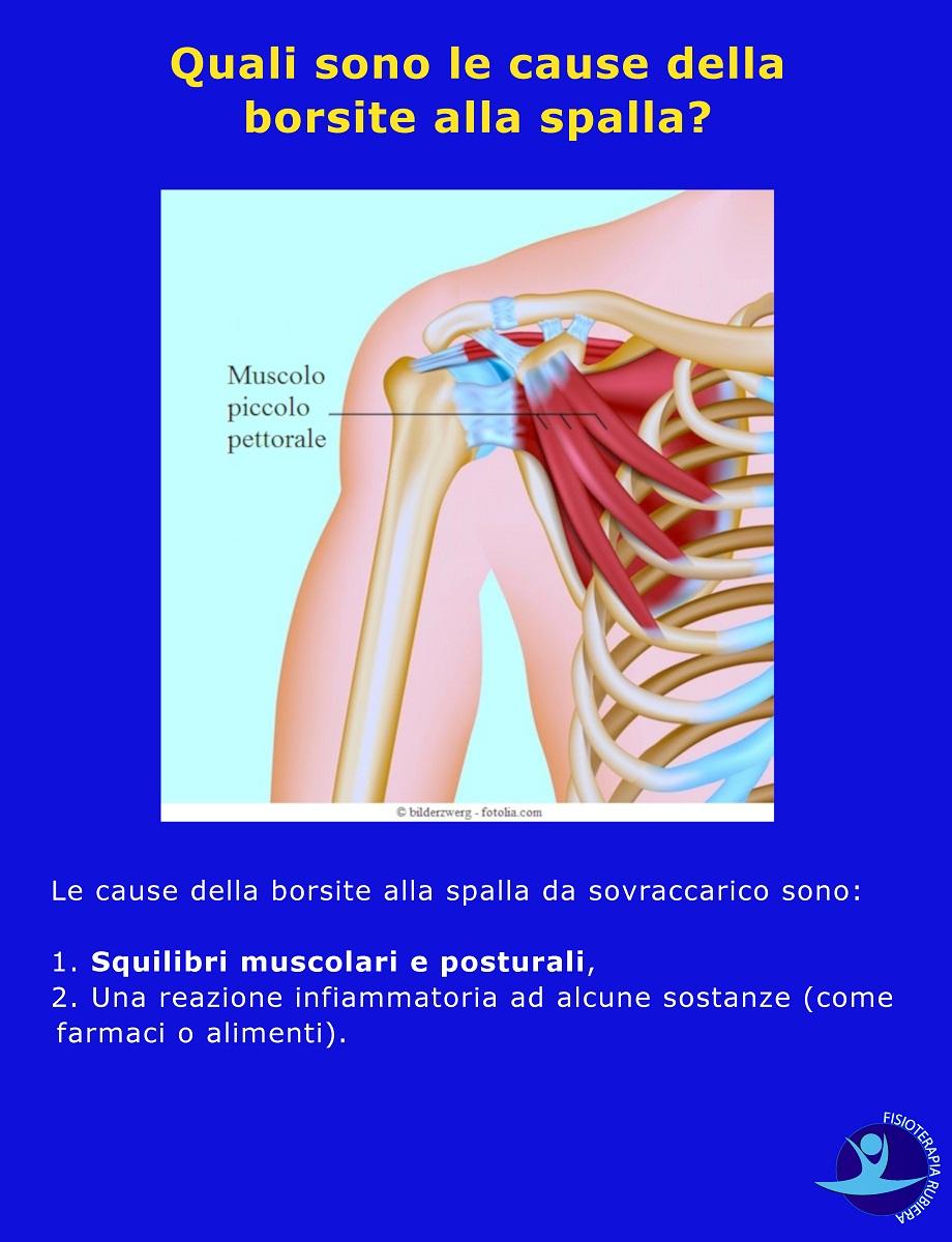 cause della borsite alla spalla