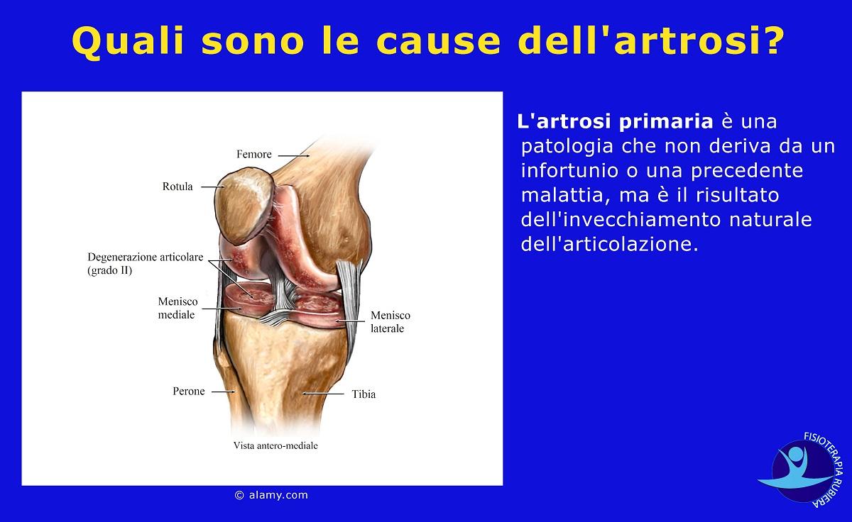 cause dell'artrosi