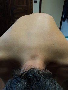 deformità, nervo, muscolo, contrattura, stiramento, strappo, gonfiore, edema, infiammazione, dolore, male, stilettata, età, post-intervento, fisioterapia e riabilitazione, schiena, lombare, sacrale, cervicalgia, cervicobrachialgia, lombosciatalgia, lombocruralgia, sportivi, calciatori, lavori pesanti, pallavolo, basket, ciclismo, neuropatia, discopatia, ernia del disco, protrusione, bulging, scoliosi, concavità, convessità, gibbo