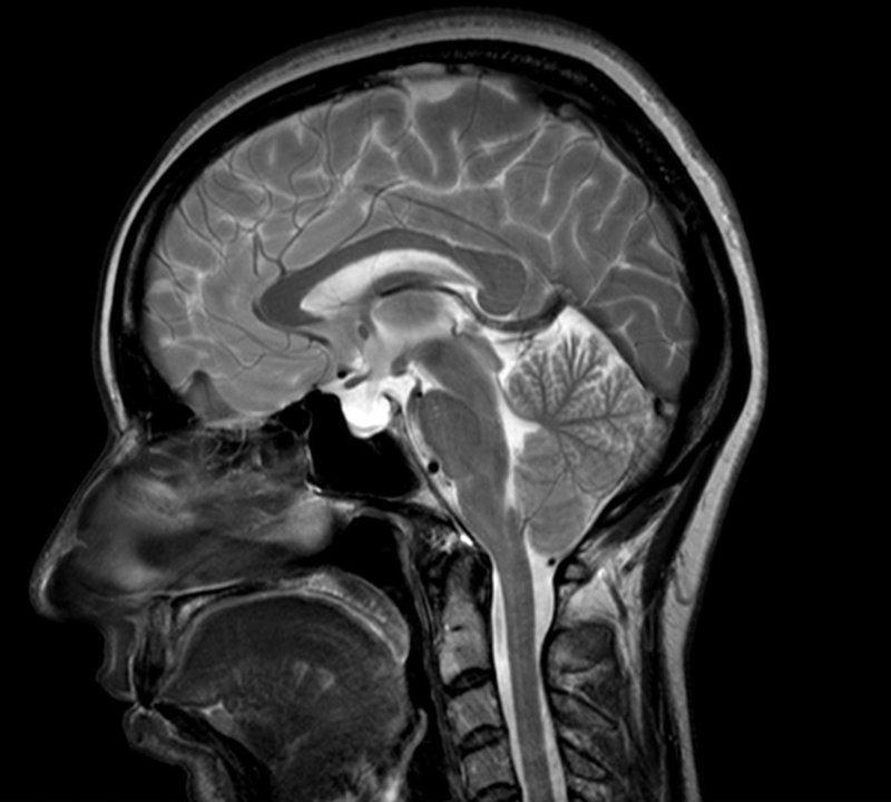 Skull with arnold chiari malformation, morocain penis
