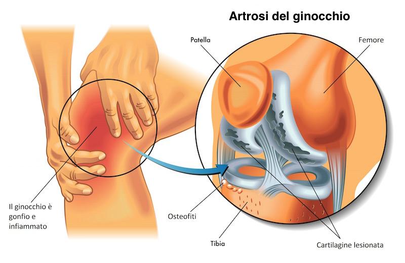 Sintomi dell'artrosi al ginocchio