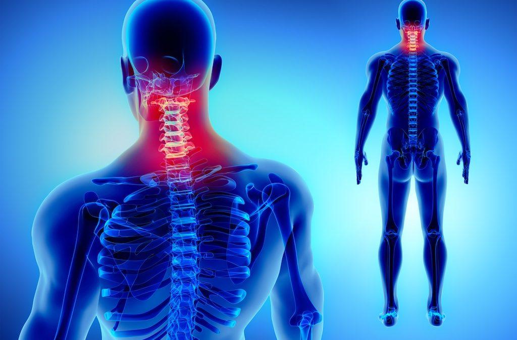 Sintomi della cervicobrachialgia e terapia