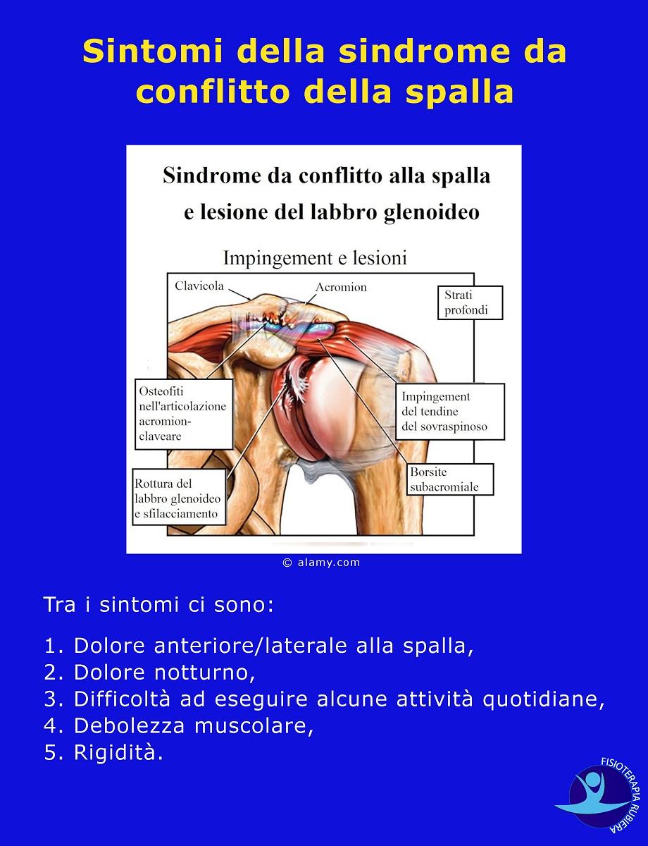Sintomi della sindrome da conflitto della spalla