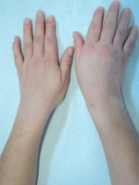 oedeme main gauche