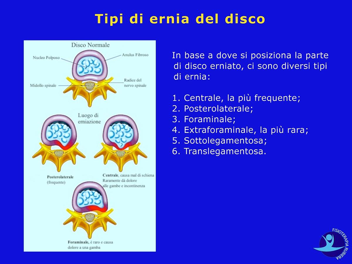 Tipi-di-ernia-del-disco