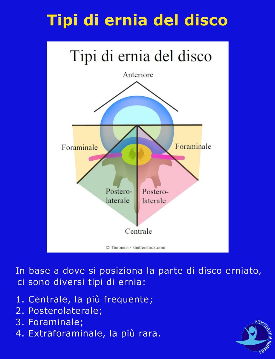 Tipi di ernia del disco