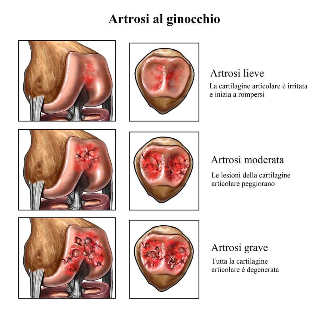 Sintomi dell'artrosi,cartilagine