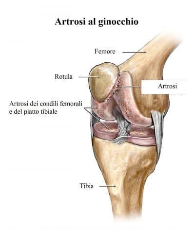 Artrosi,ginocchio,cartilagine