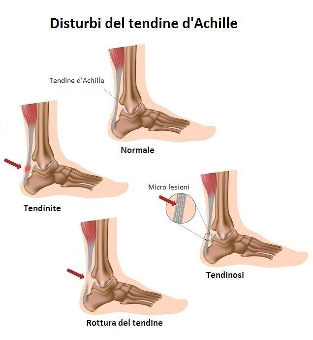 tendinite,achille,tendinosi,lesione,rottura,male,dolore,tendine,caviglia,piede,tallone,polpaccio