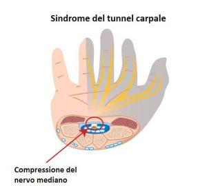intrappolamento,nervo mediano,tunnel,compressione,carpale,mano,dolor