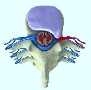 Anatomia, disco,inter,vertebrale,protrusione,destra,dx, preme, radice,nervosa, midollo,spinale,anulus,irritazione,infiammazione