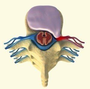 disco,brachialgia,ernia,laterale,destra,comprise,radice,nerve, vertebre,midollo,spinale,fissurato,crepato