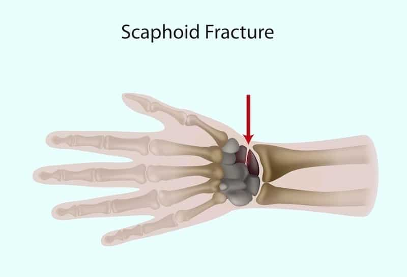 frattura,scafoide,polso,mano,carpo,osso,dolore,male,lesione,algodistrofia,sudeck