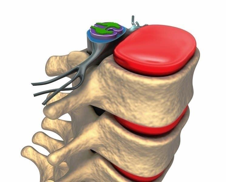 Vertebre,lombari,colonna,disco,midollo,radice,nervosa,disco,schiena