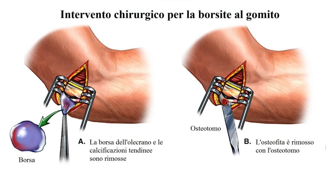 Borsite al gomito,intervento chirurgico,asportazione