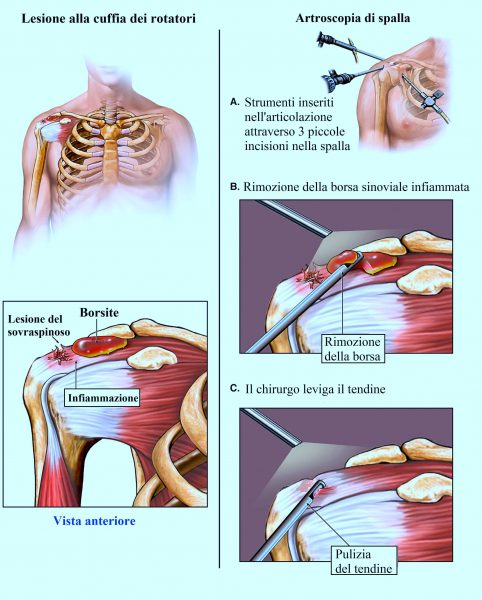 Borsite alla spalla,intervento chirurgico