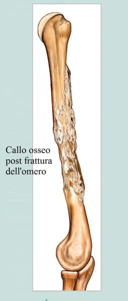 Callo osseo,frattura del braccio