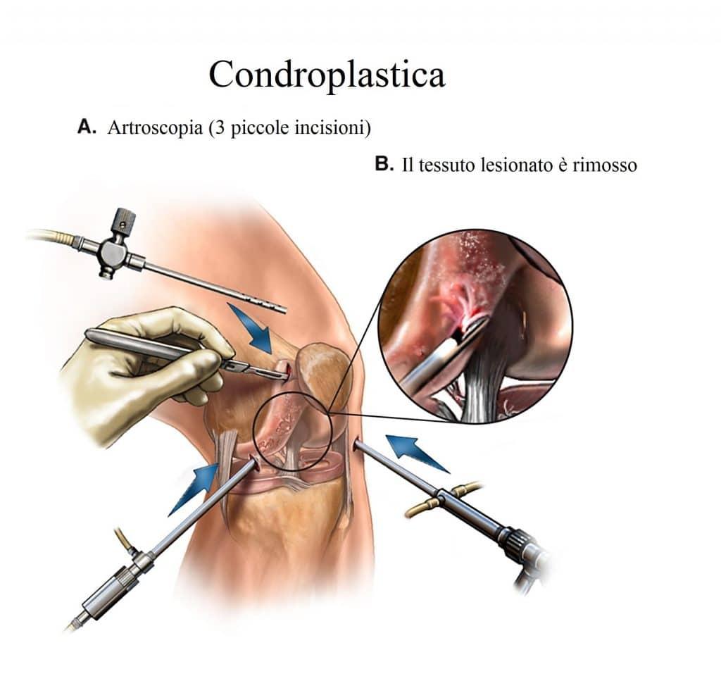 Condroplastica,intervento per la cartilagine,ginocchio