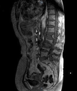 osteoporosi,crollo, vertebrale, dolore, frattura, risonanza, magnetica, calcio, intervento, fisioterapia, riabilitazione, esercizi, dolore
