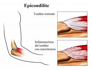 epicondilite,infiammazione,tendini del gomito
