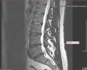 Rmn del disco intervertebrale, ernia, comprime, radice nervosa, vertebre, midollo spinale, nervo, nucleo polposo, anulus fibroso, fissurato, crepato, disidratazione, sacro, lombare, infiammazione